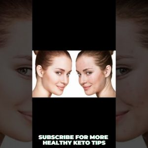 HOW Keto Diet Improves ACNE and Skin - Health Benefits Of Keto